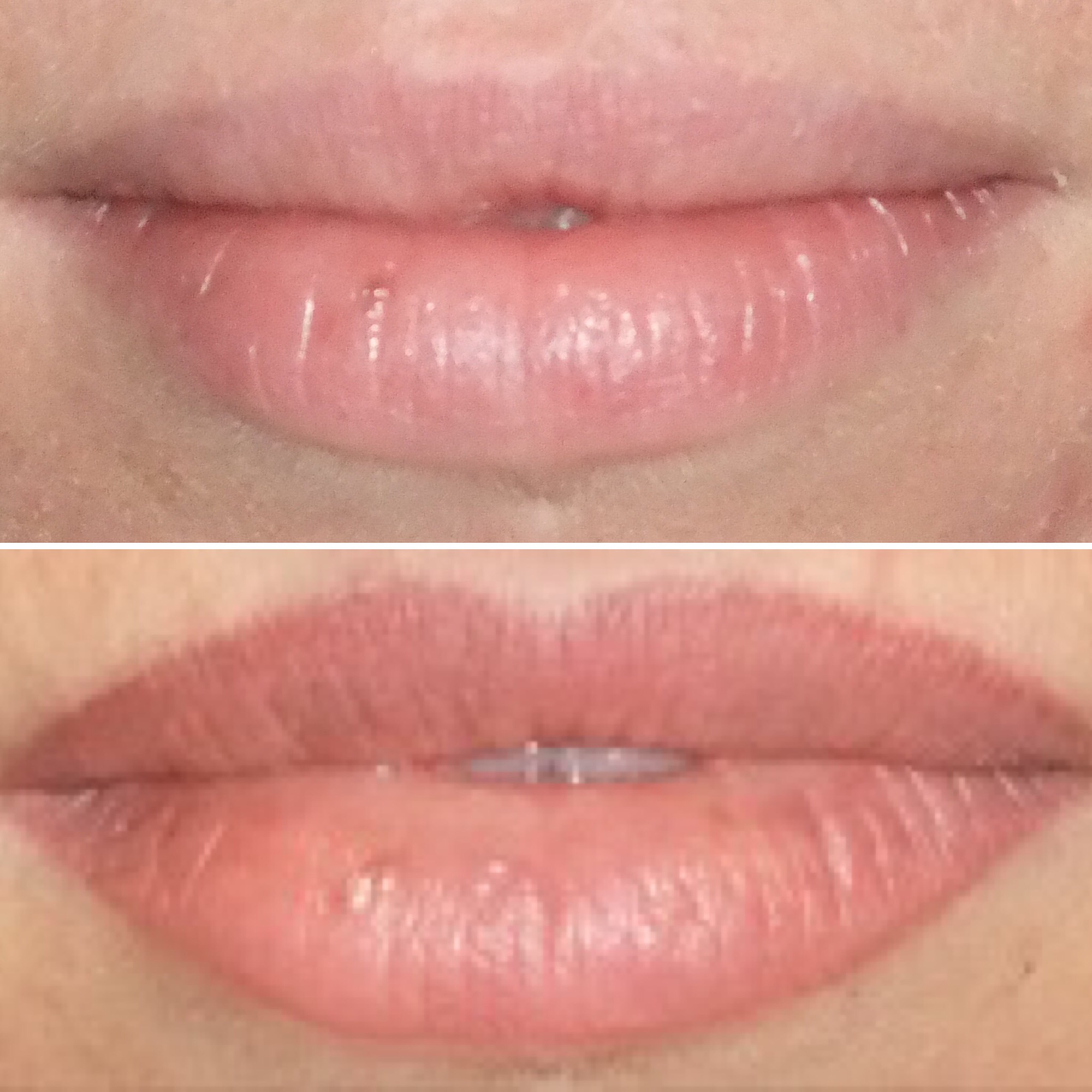 Lip Tattoo Perth - Enhance Skin Aesthetics Claremont