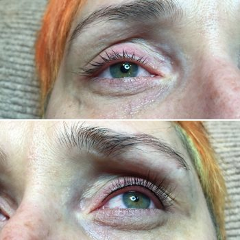 Thin upper eyelash enhancement